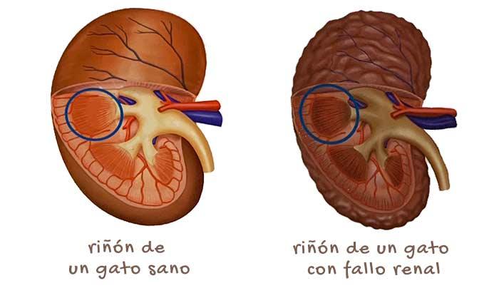 causas del rinon inflamado